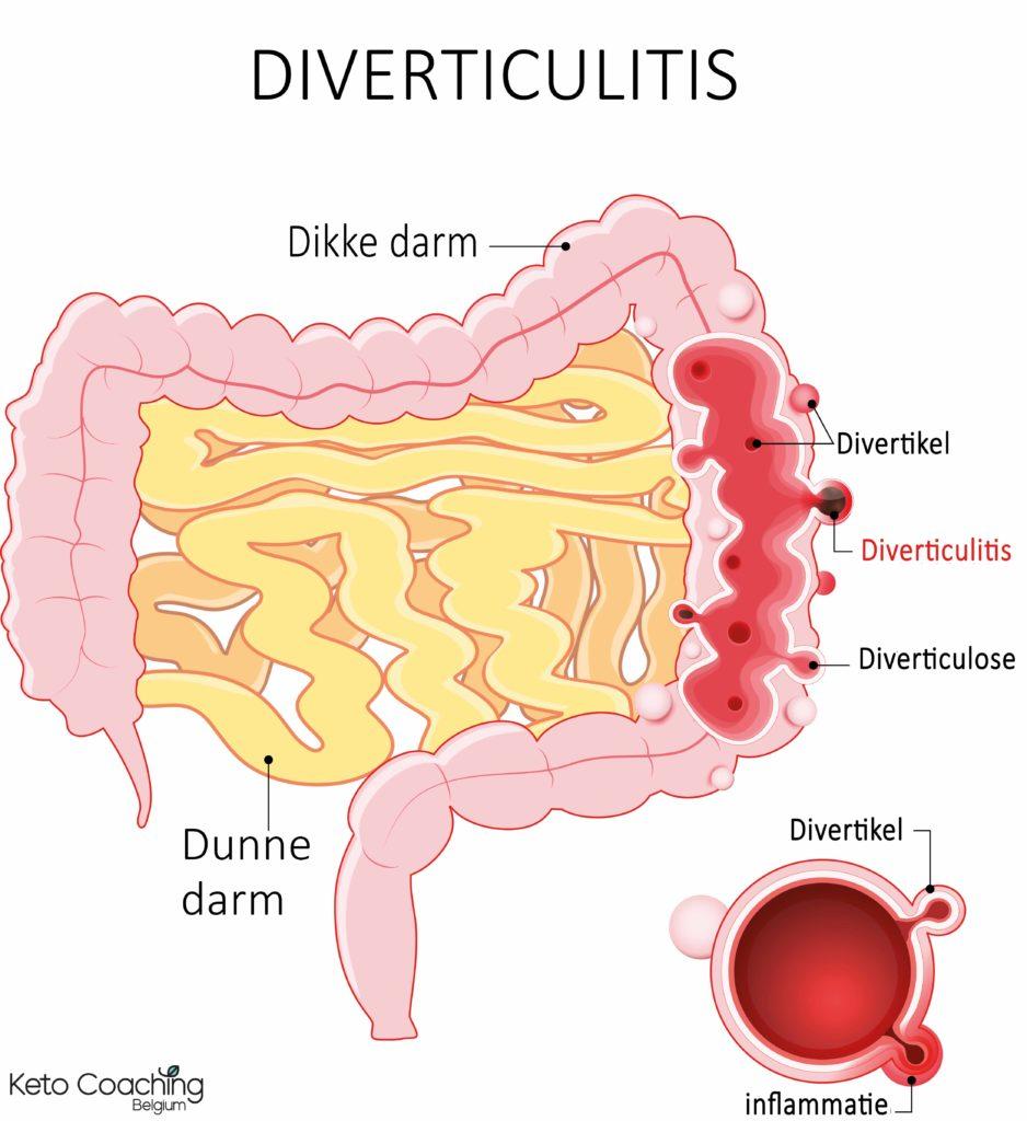 Diverticulitis diverticulose